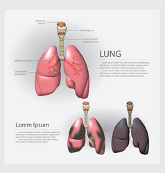 Lung with detail and lung cancer vector
