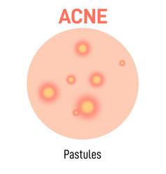 Pastules skin acne type vector