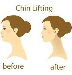 a woman with a double chin and a vector image