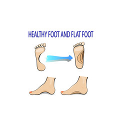 flat feet and healthy foot vector image