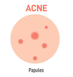 Papules skin acne type vector