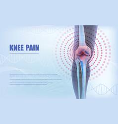 Knee pain relief bones knee vector