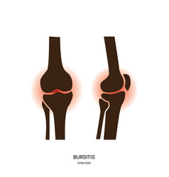 bursitis and knee joint icon vector image