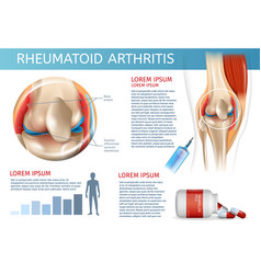 Infographic treatment method rheumatoid arthritis vector