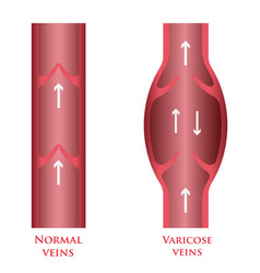 varicose veins vector image