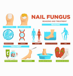 Nail fungus reasons and treatment poster with text vector
