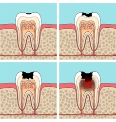 Dental caries stages vector image vector image