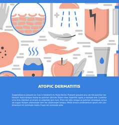 Atopic dermatitis concept background in flat style vector