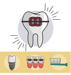 Dental braces elements vector