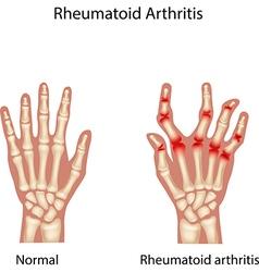 Rheumatoid Arthitis vector