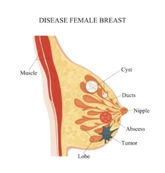 Disease female breast vector image