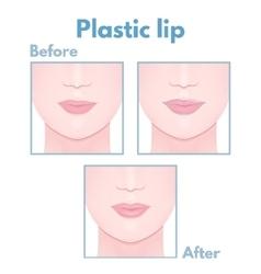 plastic surgery lip vector image