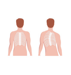 thoracic scoliosis on thoracic spine and vector image