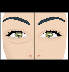 dark circles under eyes to remove before and after vector image