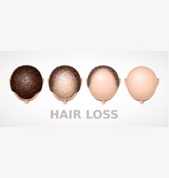 hair loss set of four stages of alopecia vector image