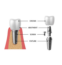 Tooth implant realistic implant structure vector