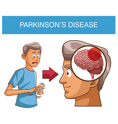 Parkinsons disease cartoon vector