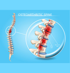 Spinal osteoarthritis realistic concept vector