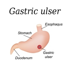 Stomach ulcer affected Gastric ulcer vector image