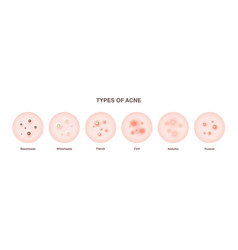 Acne types set vector