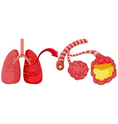 Human lung with pneumonia vector