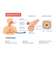 Healthy airway and bronchitis diagnosis symptoms vector