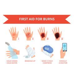 Burn skin first treatment human hand fire or vector
