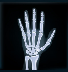 Realistic x-ray hand medical image vector