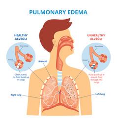 pulmonary edema - respiratory lung disease vector image