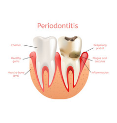 periodontitis inflammation of gums 3d realistic vector image