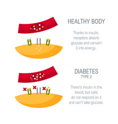 Diabetes type 2 concept in flat style vector