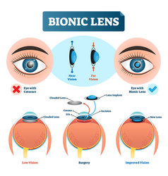 Bionic lens vision structure vector