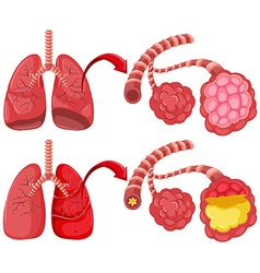 Human lungs with pneumonia vector image vector image