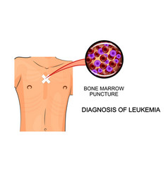 Bone marrow puncture leukemia vector