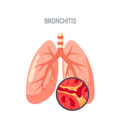bronchitis disease icon in flat style vector image