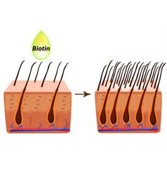 Treatment alopecia vitamins hair biotin vector