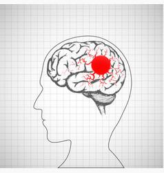Human brain inside the head migraine disease vector