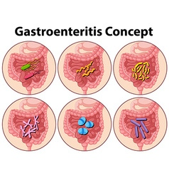 Diagram showing gastroenteritis concept vector