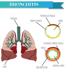 Healthy and inflamed bronchus Chronic Bronchitis vector