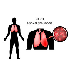sars inflamed lungs and the causative agent vector image
