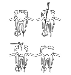 Root canal procedure vector image vector image