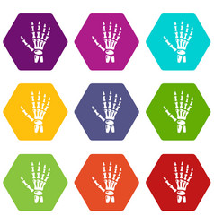 inflammation of hand icons set 9 vector image