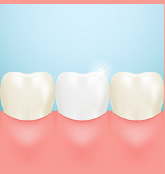 Healthy tooth teeth whitening isolated on a vector