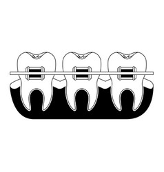 Teeth with braces and tooth root view in black vector