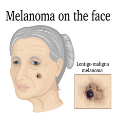 Melanoma on the face vector