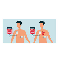 Automated external defibrillator with human vector