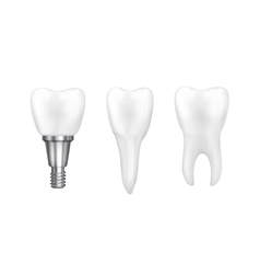 Tooth implants and normal tooth isolated on white vector image