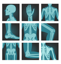 Set x-ray shots pictures human body parts vector
