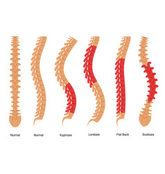 Osteoporosis bone types infographics concept card vector