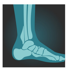 X-ray shot foot side view human body bones vector